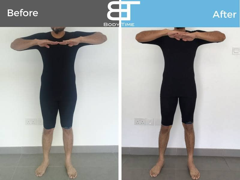 Fast Weight Loss with EMS Workout -Before and After Photos Body Time Chicago